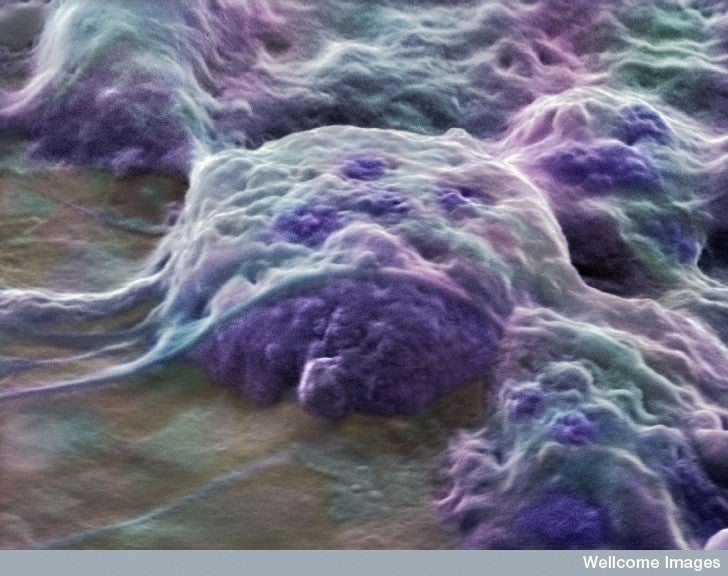 First Government-Approved Embryonic Stem Cell Trial Stopped in Its Tracks By Economy