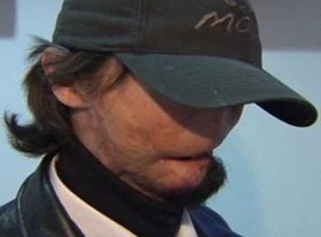 Texas Man Receives First American Full-Face Transplant