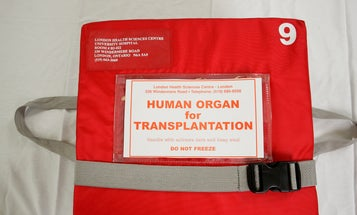 FYI: Are Organs Ever Re-Donated?