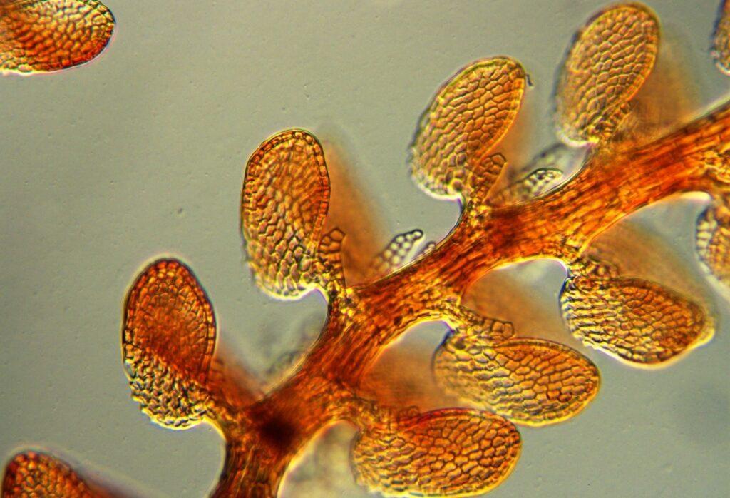 Unknown liverwort species under the microscope.