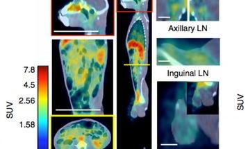 Body Scan Finds Secret Hiding Spots Of HIV-Like Virus In Monkeys