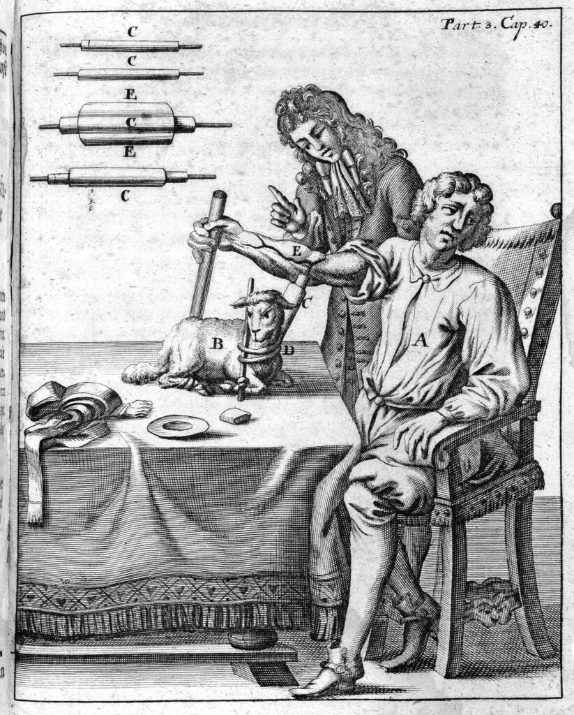 An early blood transfusion from lamb to man