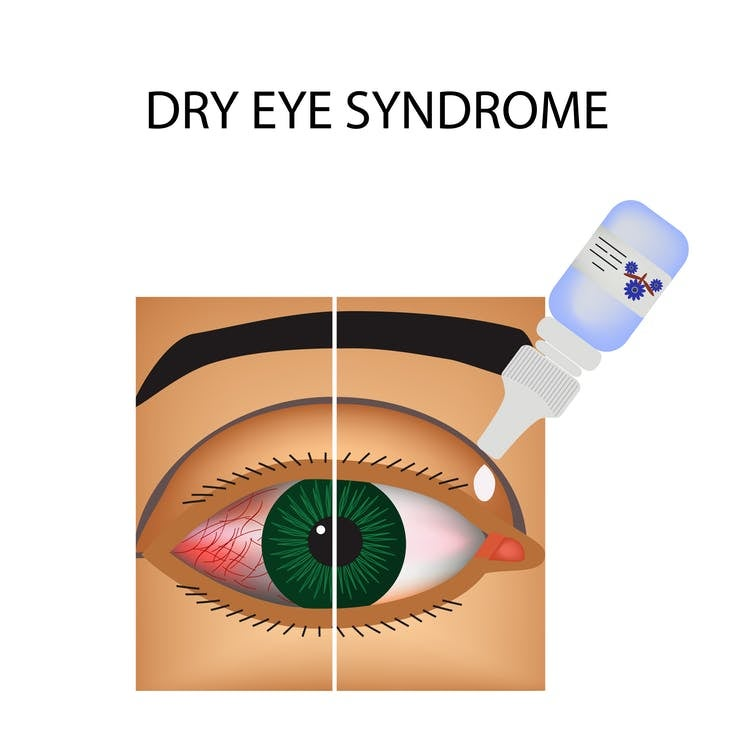 dry eye disease treatment