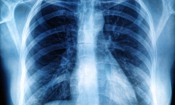 Poor lung cancer screening guidelines miss too many African American smokers