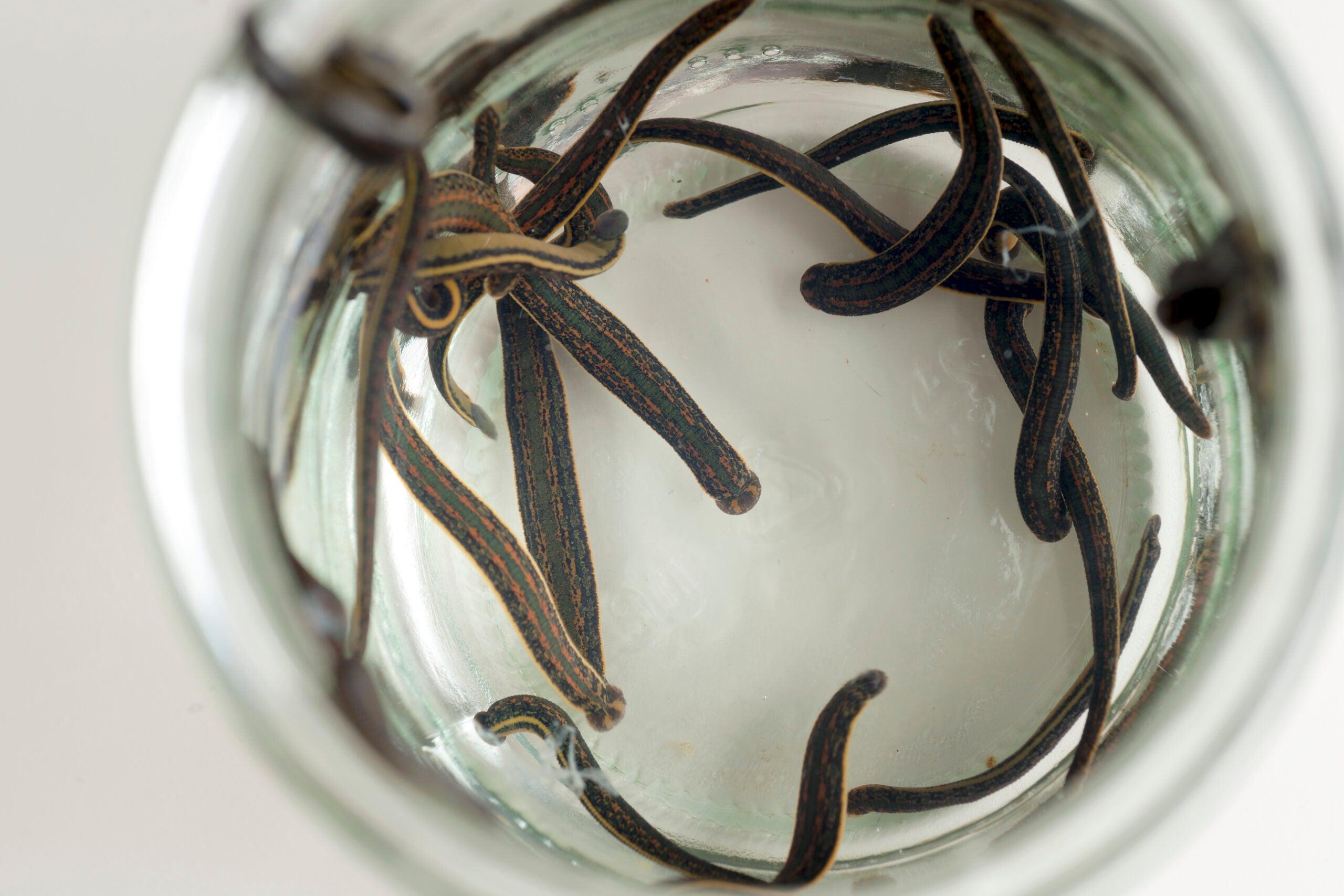 Modern medicine still needs leeches