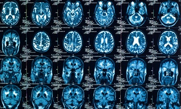 Artificial intelligence is taking an increased role in diagnosing and treating cancer