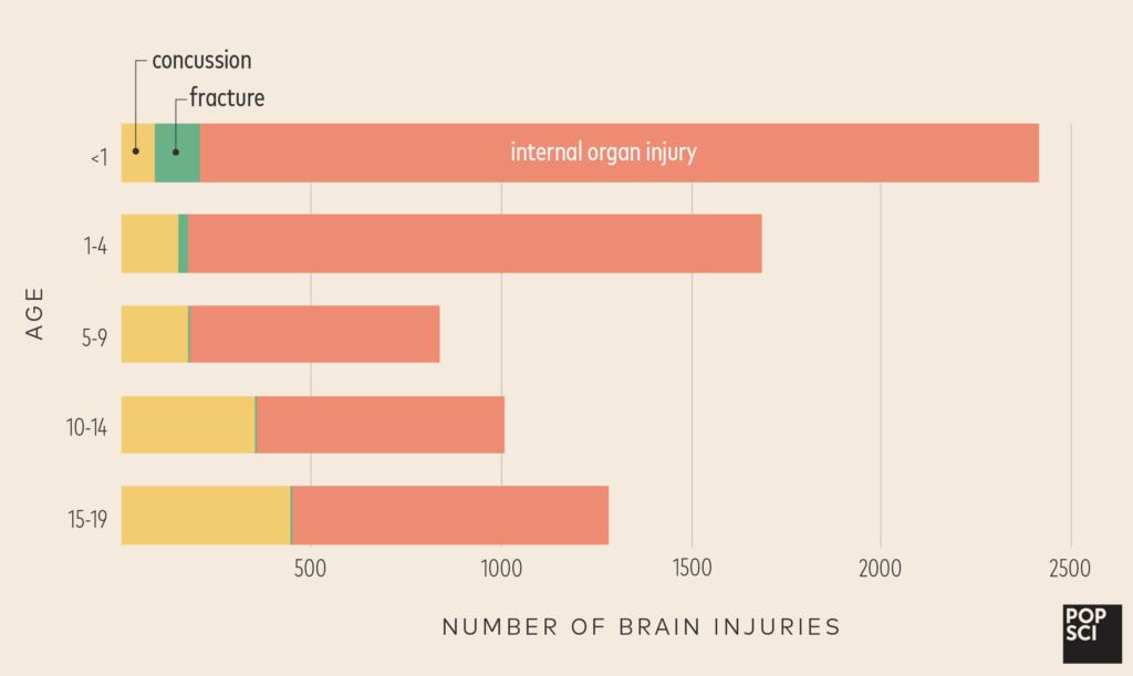 brain injuries children