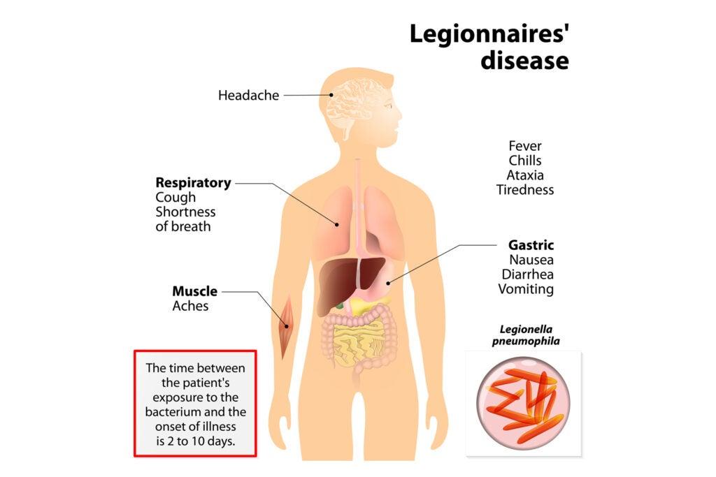 Symptoms of Legionnaires' disease chart