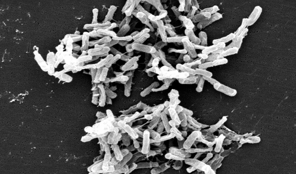 Clostridioides difficile bacteria