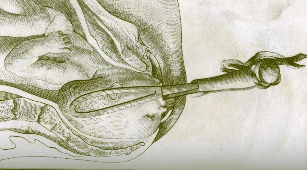 18th-century illustration of forceps