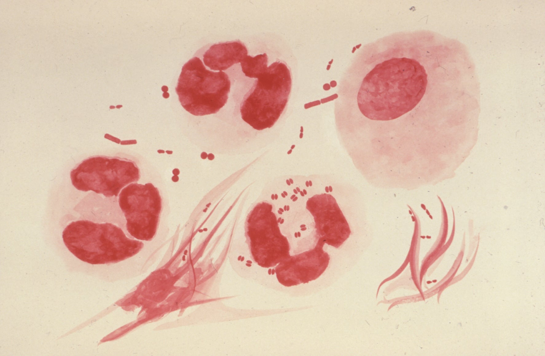 Gram stain showing gonorrhea-causing bacteria