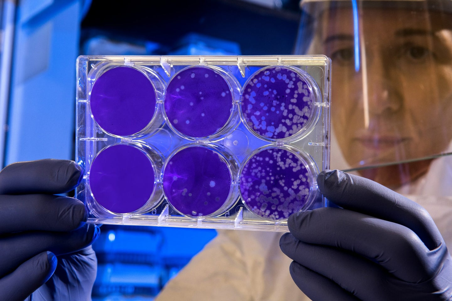scientist in clean suit holding up a tray of cells stained purple