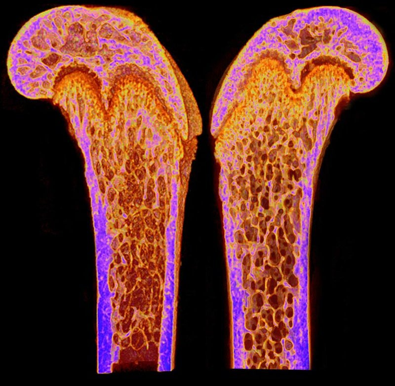 A CT scan depicts the density of the femurs of two young mice.