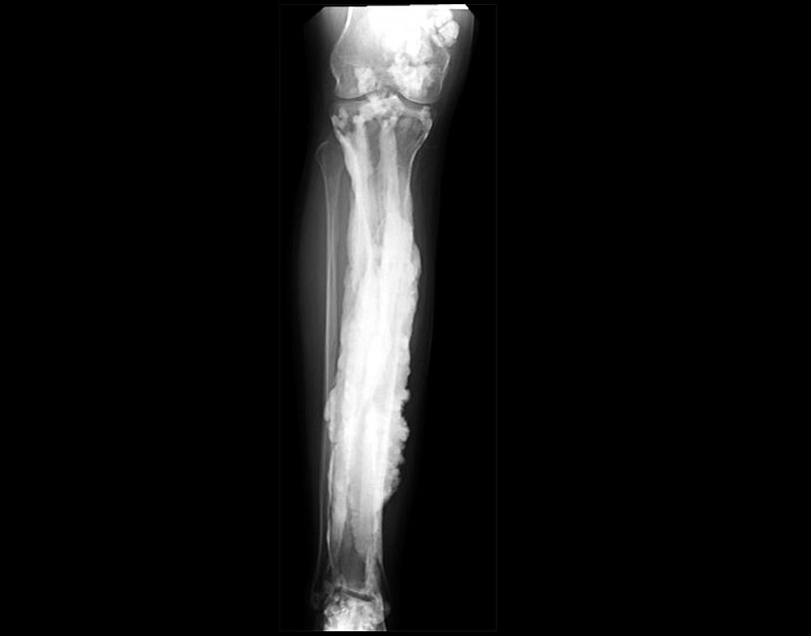x-ray of bone with extra growths likened to dripping candle wax