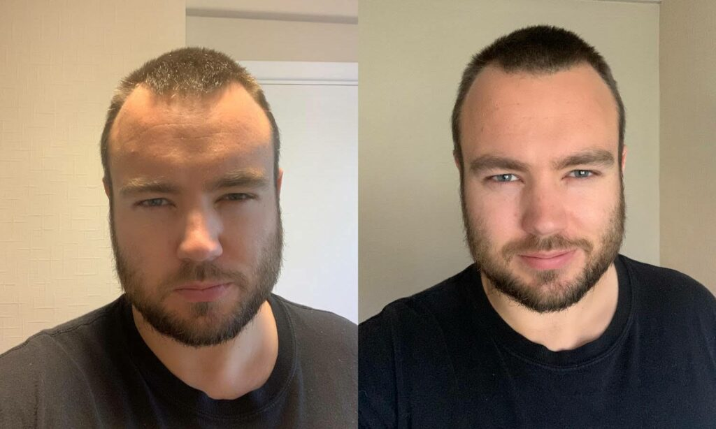 Two photos of a white man with short dark hair and a short dark beard, wearing a black shirt. The photo on the left has harsh shadows created by overhead lighting. The photo on the left is well lit.