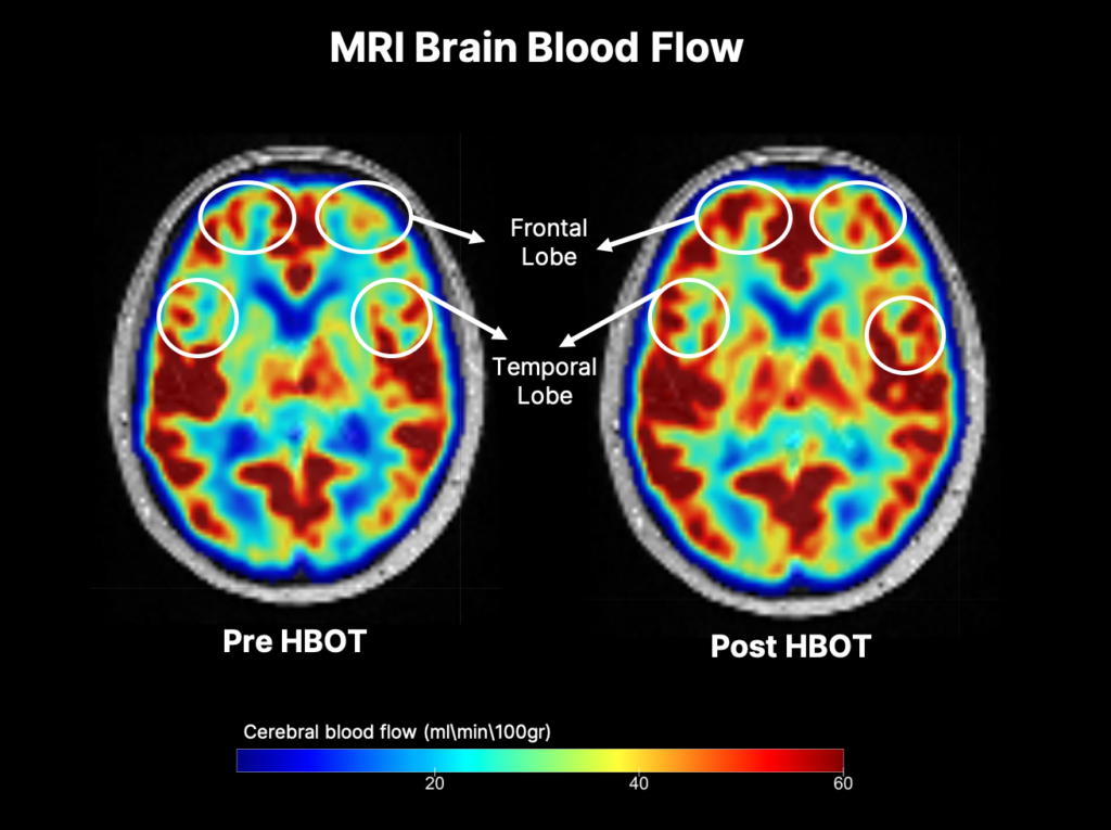 A heat map of brain activity prior to after therapy