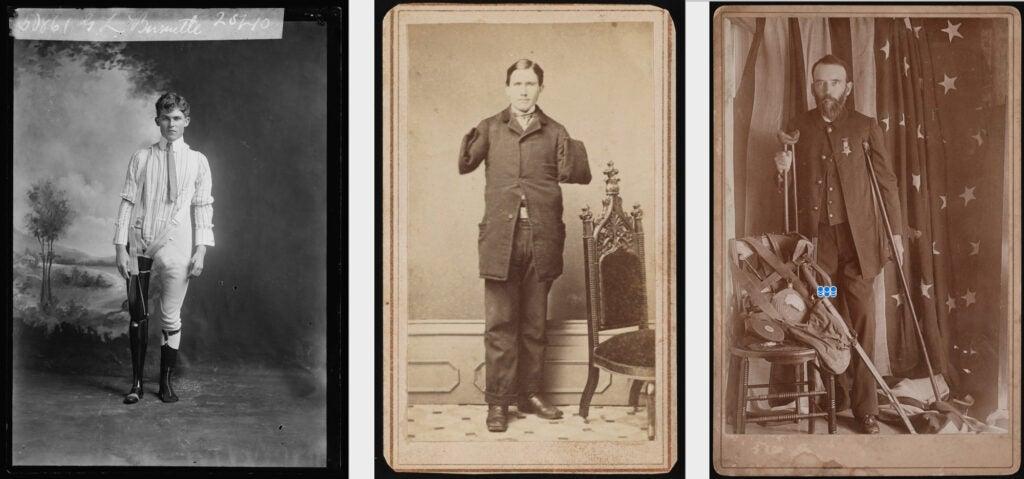 Civil War veteran amputees