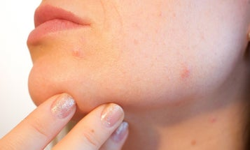 This popular acne medication carries a disturbing legacy