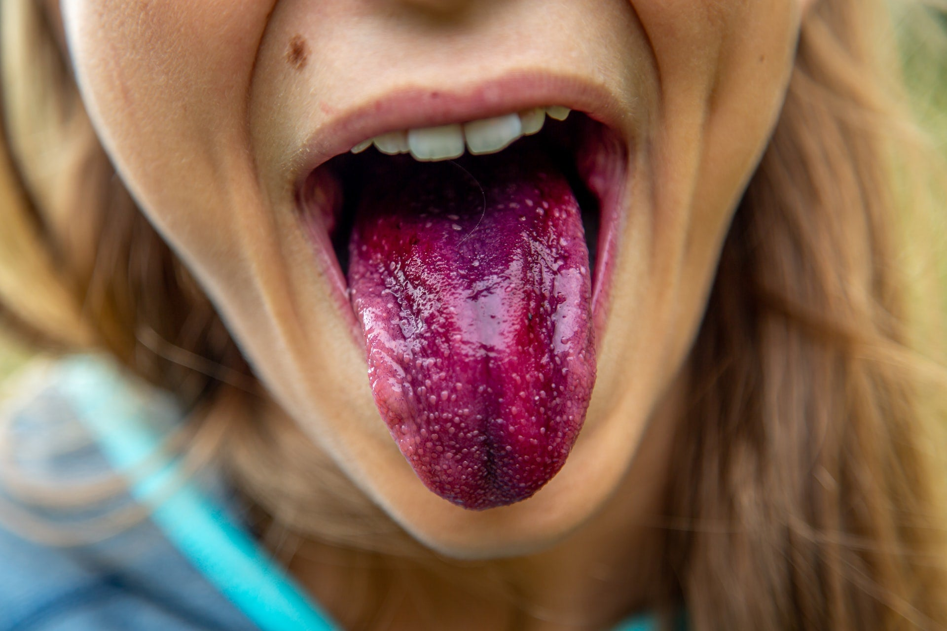 A person sticking out a purple-stained tongue