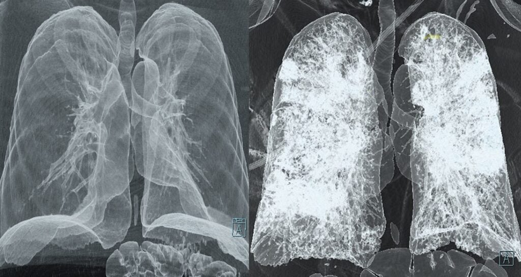 CT scans of healthy lungs vs. lungs attacked by COVID-19