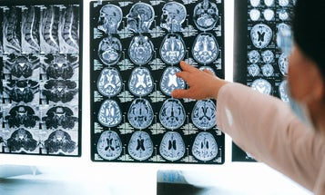 COVID-19 survivors may have higher risk of anxiety, depression, and neurological disorders