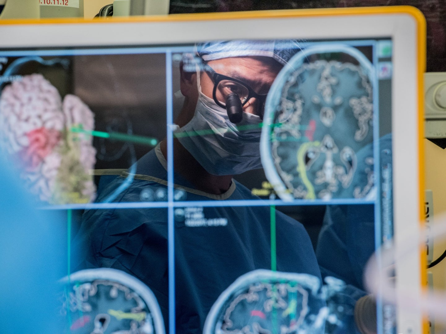 A doctor looks at images of a brain as he performs surgery.