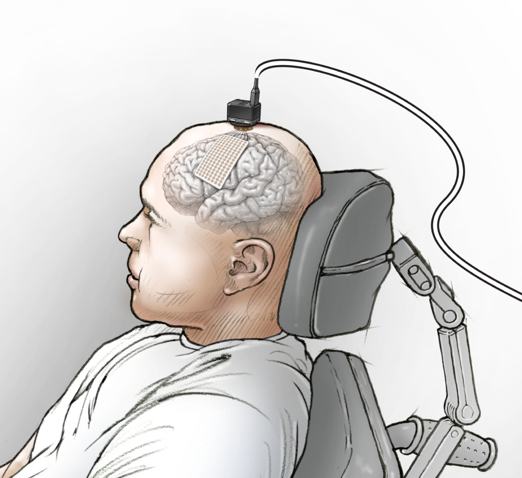 Illustration showing placement of the eCOG electrode on the participant's speech motor cortex and the head stages used to connect the electrode to the computer.