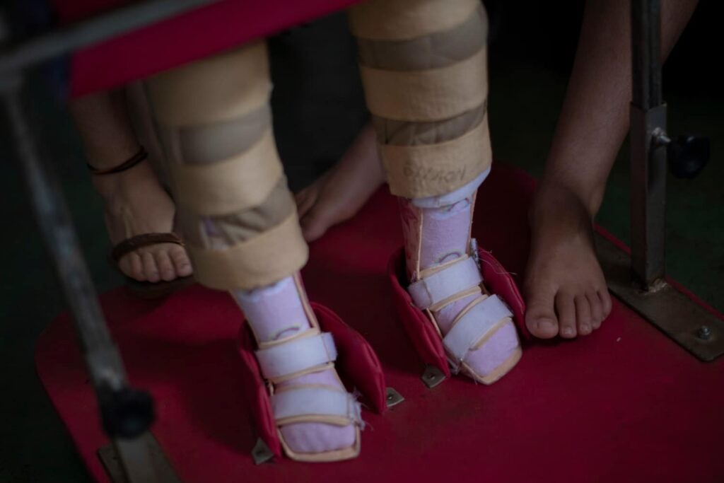 Baby with Zika congenital syndrome walking with pink leg braces