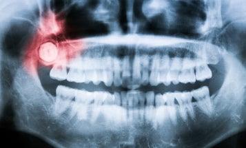 We finally know why we grow wisdom teeth as adults